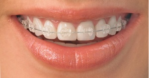 clear-adult-braces